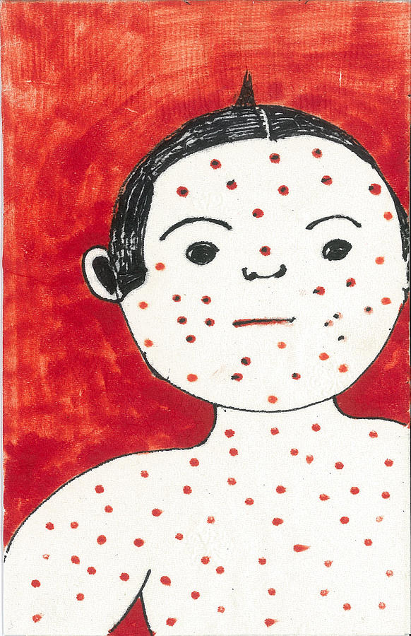 582x900 Baby Alfalfa's Measles Drawing By Don Koester