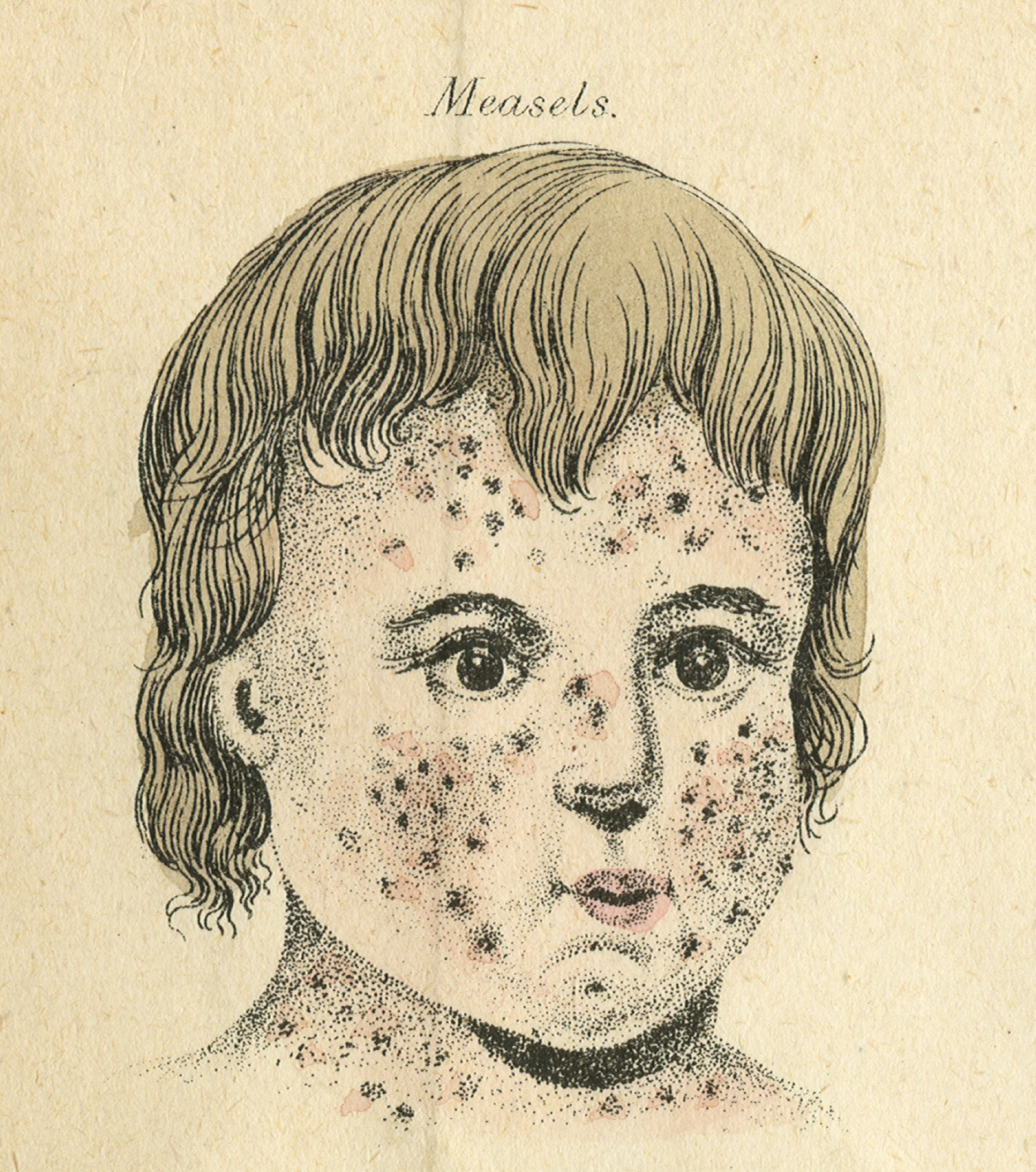 2626x2970 In January Or February 1801 Fanny Amp Mary Had Measles. In A Letter