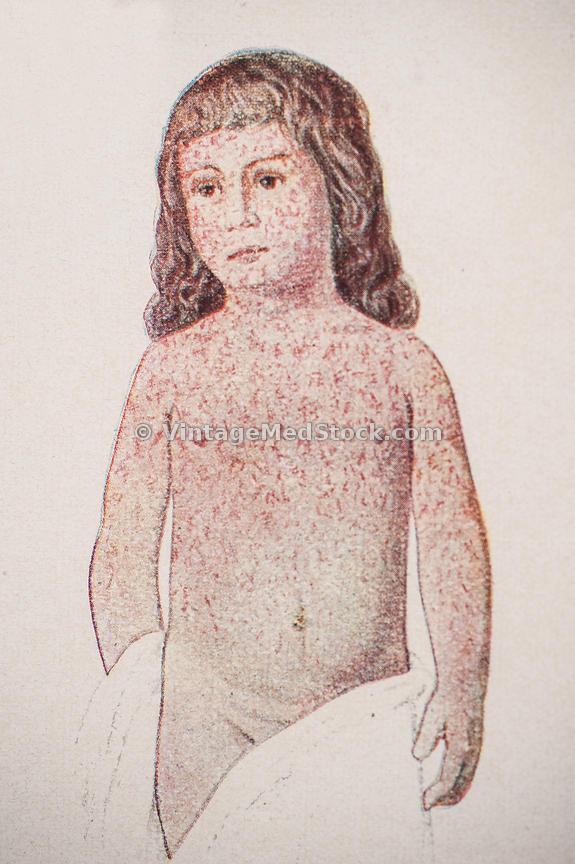 575x864 Vintagemedstock Measles