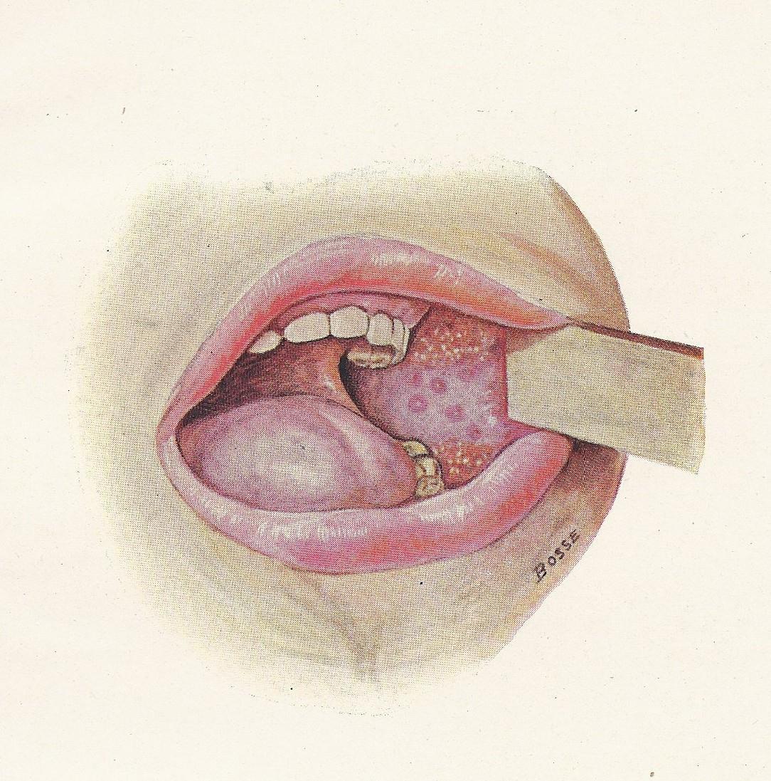 1084x1097 Md Vintage Medical Illustration, Measles, Mouth. Taken