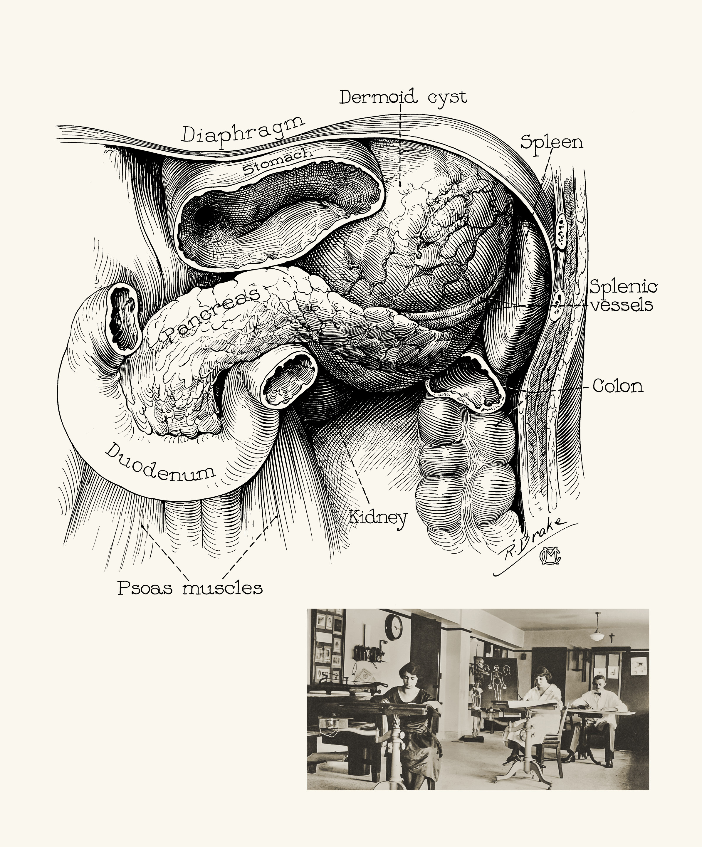 2390x2884 Medical Illustration Clarifies Medical Practice Discovery's Edge