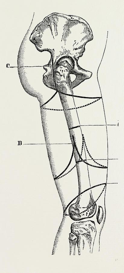 411x900 Circular Amputation Of Thigh, Medical Equipment Drawing By Litz
