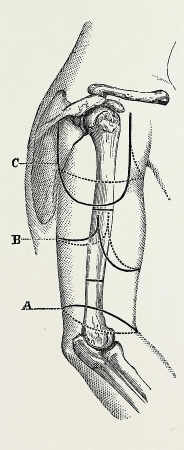 368x900 Circular Inclined Amputation, Medical Equipment Drawing By Litz
