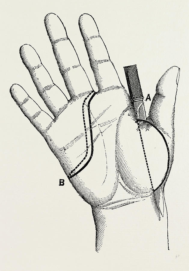 629x900 Disartieulation Of The Thumb, Medical Equipment Drawing By Litz