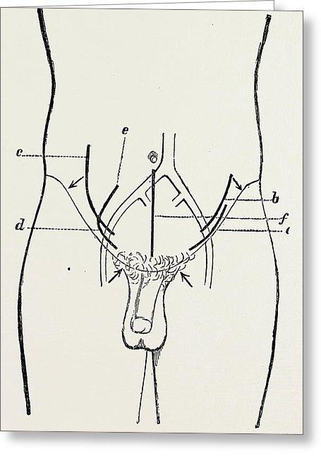 455x646 Ligature Of External Iliac, Medical Equipment Drawing By Litz