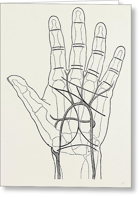 455x646 Surface Markings On The Palm Of Ffile Hand Drawing By Litz Collection