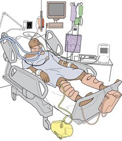 250x288 Tbi, Traumatic Brain Injury (Tbi), Brain Injury