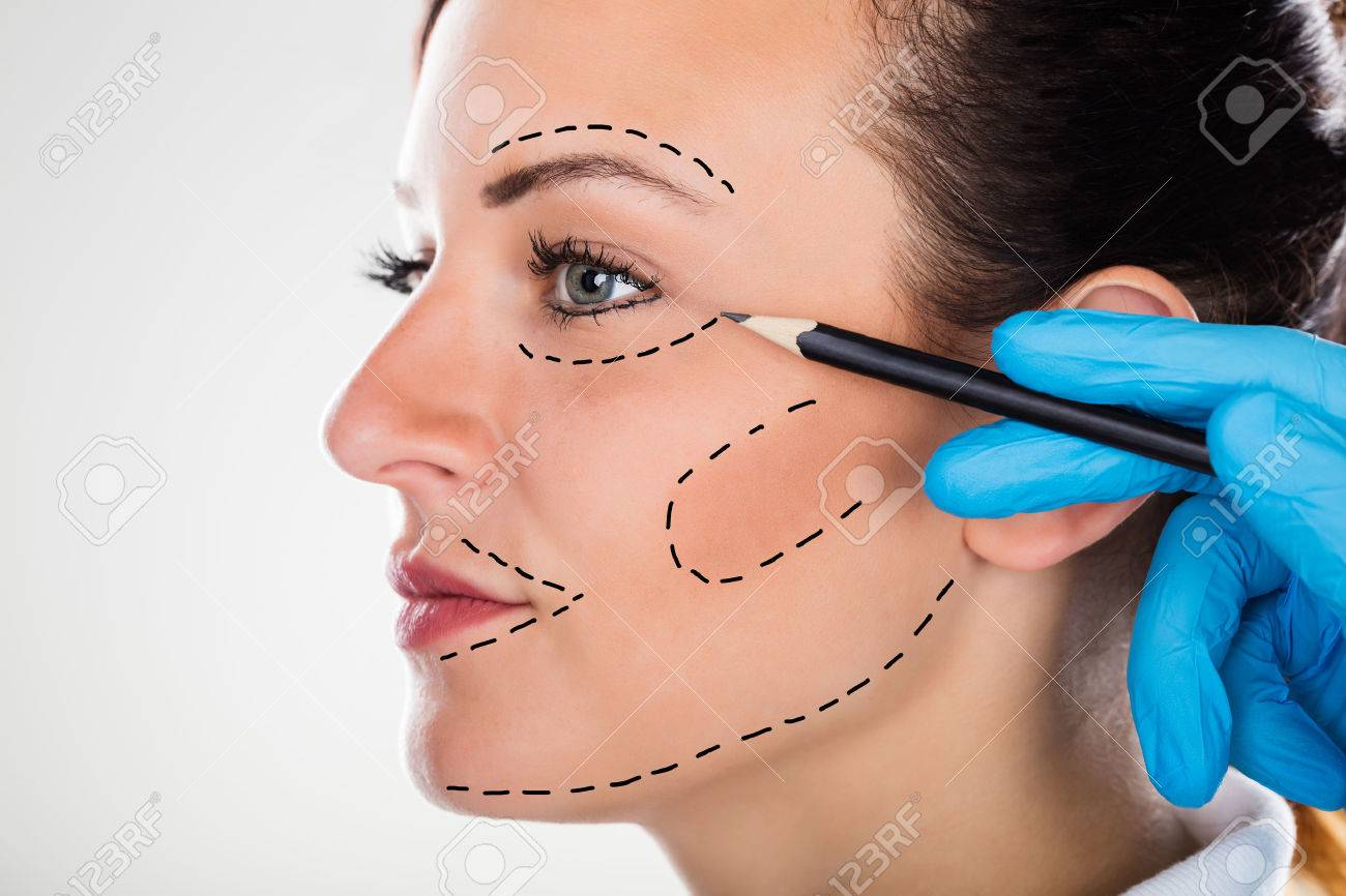 1300x866 Close Up Of A Surgeon Correction Drawing Lines On Young Woman
