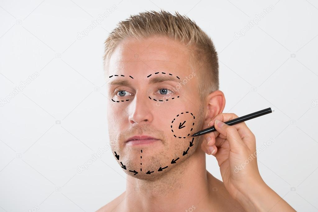 1023x683 Correction Mark For Plastic Surgery Stock Photo Andreypopov