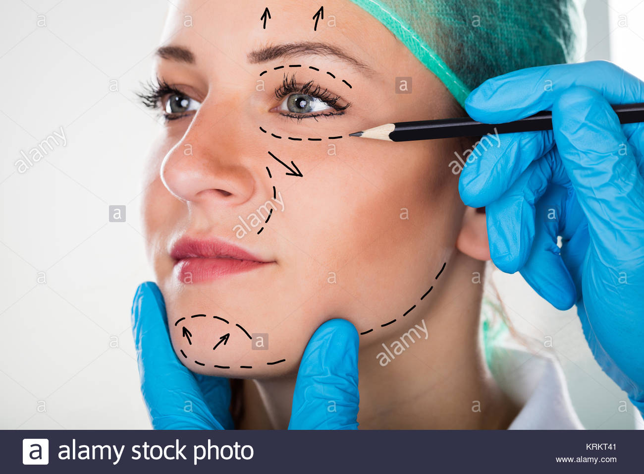1300x956 Surgeon Drawing Lines On Woman's Face For Plastic Surgery Stock