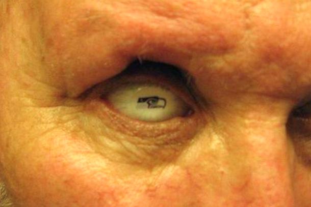 610x407 Total Pro Sports Seahawks Fan Gets Prosthetic Eye With Seahawks