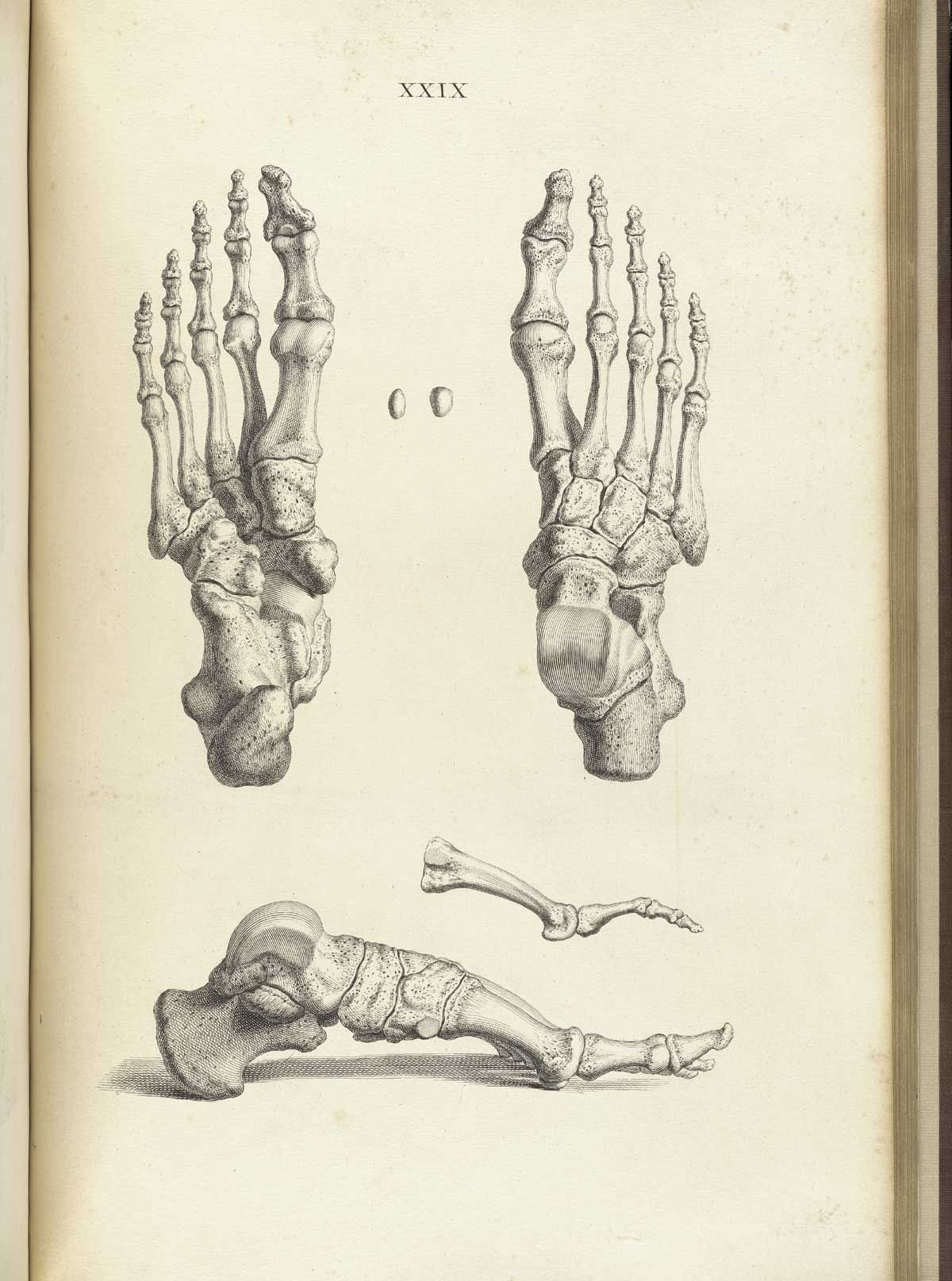 1200x1615 Bones Of The Foot, From William Cheselden's Osteographia, Nlm Call
