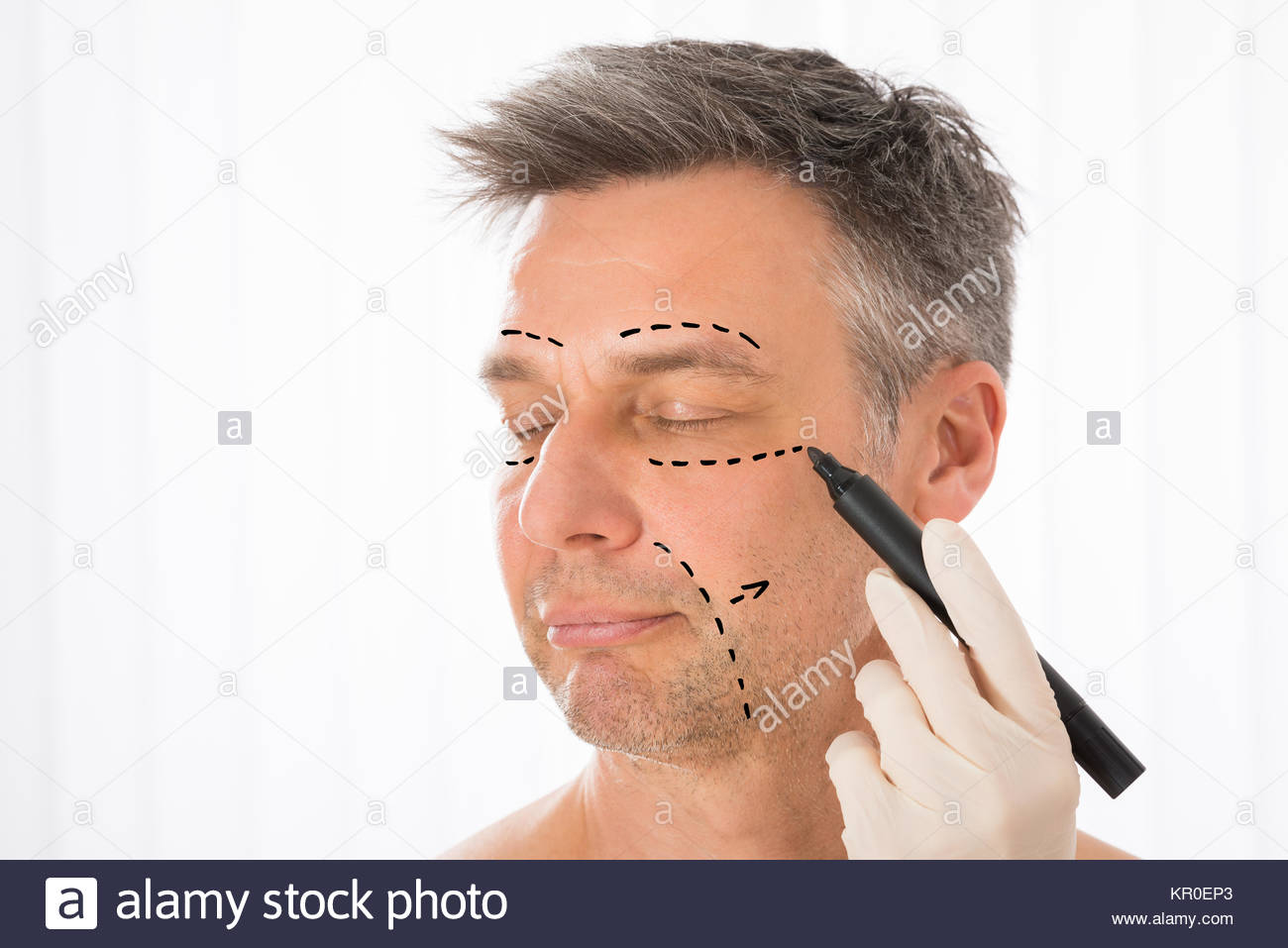 1300x957 Surgeon Drawing Correction Lines On Man Face Stock Photo, Royalty