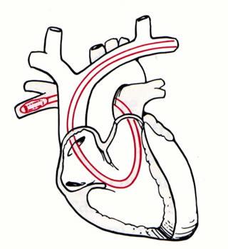 320x349 Pulmonary Artery Catheter Swan Ganz