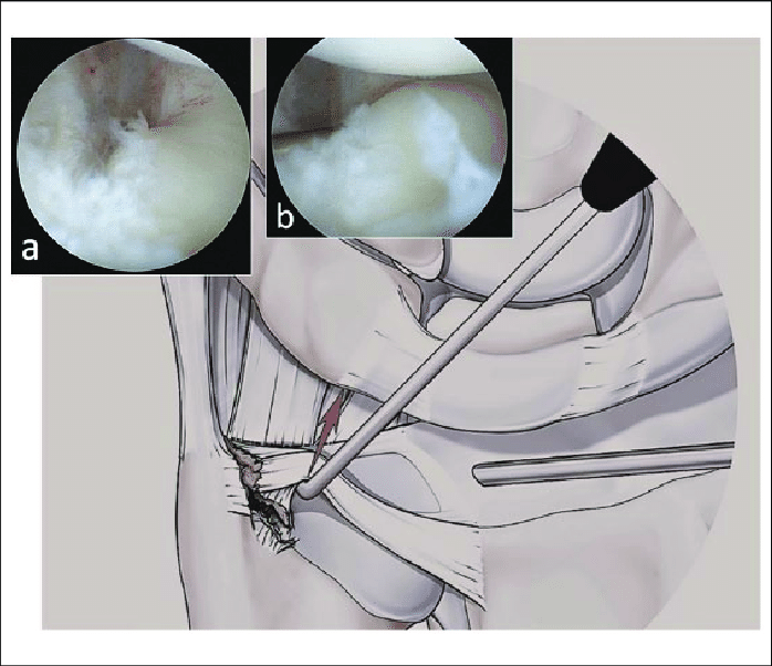 698x602 Drawing Showing A Foveal Avulsion Associated With A Peripheral