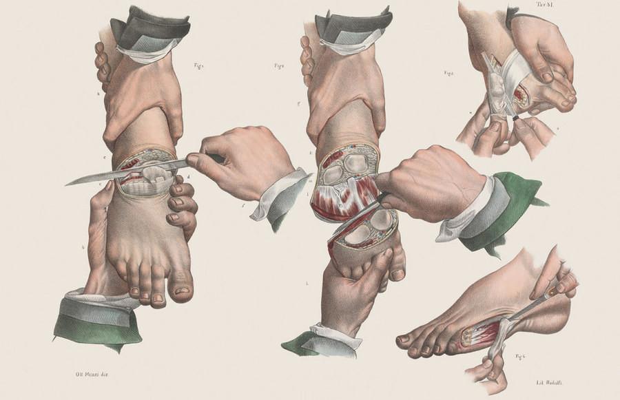 900x581 Victorian Surgery Art Drawings