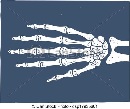 450x378 X Ray Examination Illustrations And Clipart. 1,687 X Ray