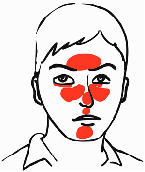 300x354 What Is Rosacea Difference Between Rosacea And Acne
