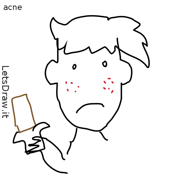 600x600 Acne (Body Part)