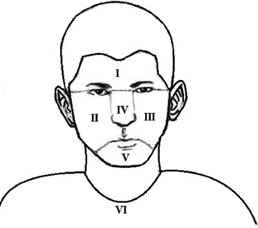 370x327 Six Locations Of The Global Acne Grading System (13).