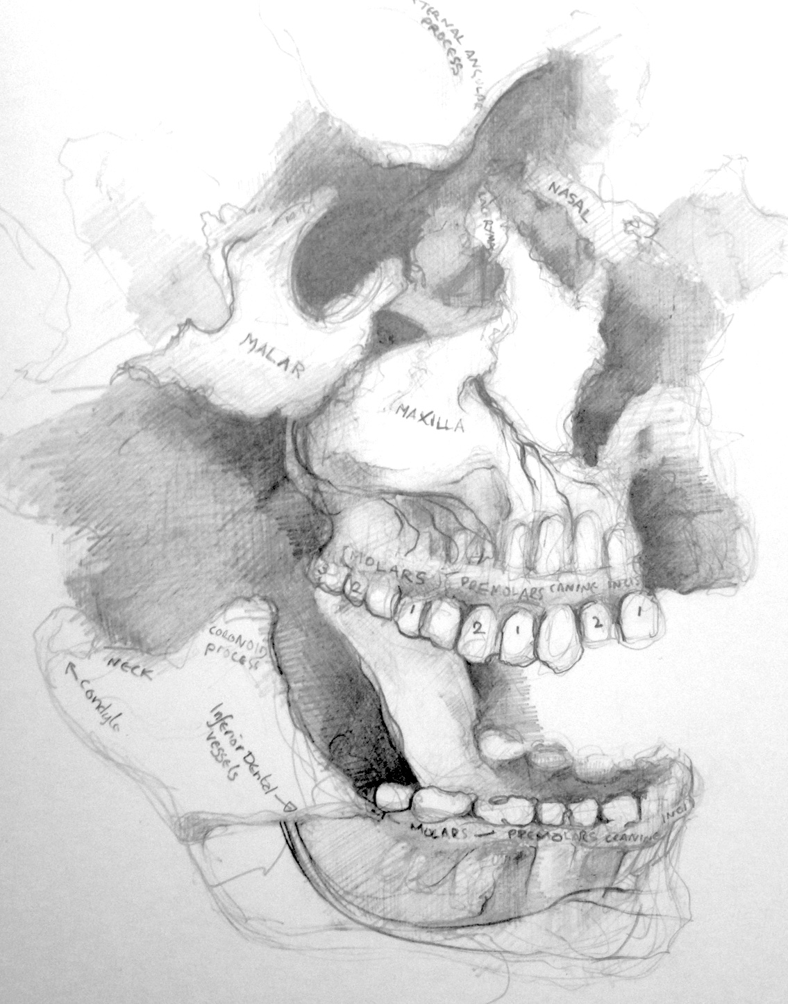 1135x1445 Dundee, Theil Cadavers And Exploded Skulls Disfiguration