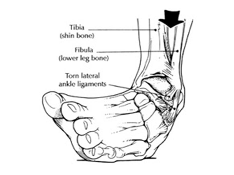 Ankle Drawing At Getdrawings Com
