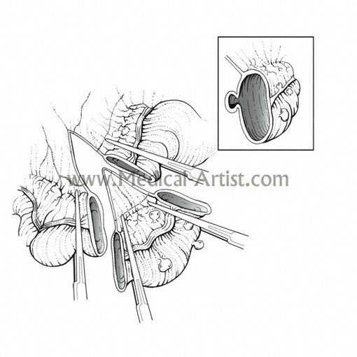 510x510 Traditional Pen And Ink Medical Illustrations Gallery Hand Draw