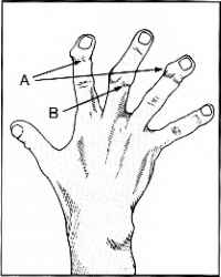 200x250 Fibrous Flexor Sheaths Fingers