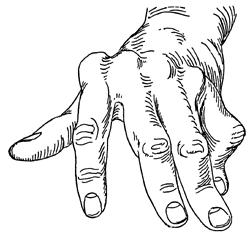 250x237 Rheumatoid Arthritis Arthritis Treatment Houston Tx