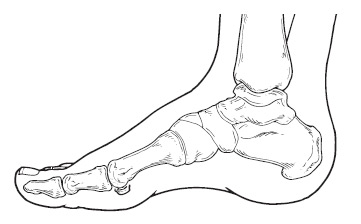 361x224 Rheumatoid Arthritis In The Foot And Ankle
