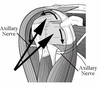 348x299 Shoulder Arthritis Rotator Cuff Tears Uw Orthopaedics