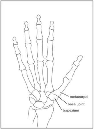 329x448 Thumb Arthritis Raymond Severt, M.d.