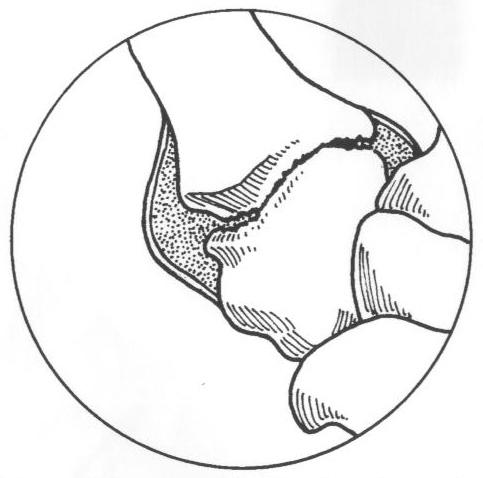 483x478 Arthritis Of The Basilar Joint Of The Thumb