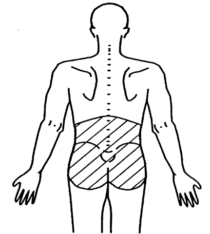 431x480 Low Back Pain And Injury In Athletes (Pathogenesis) Part 1