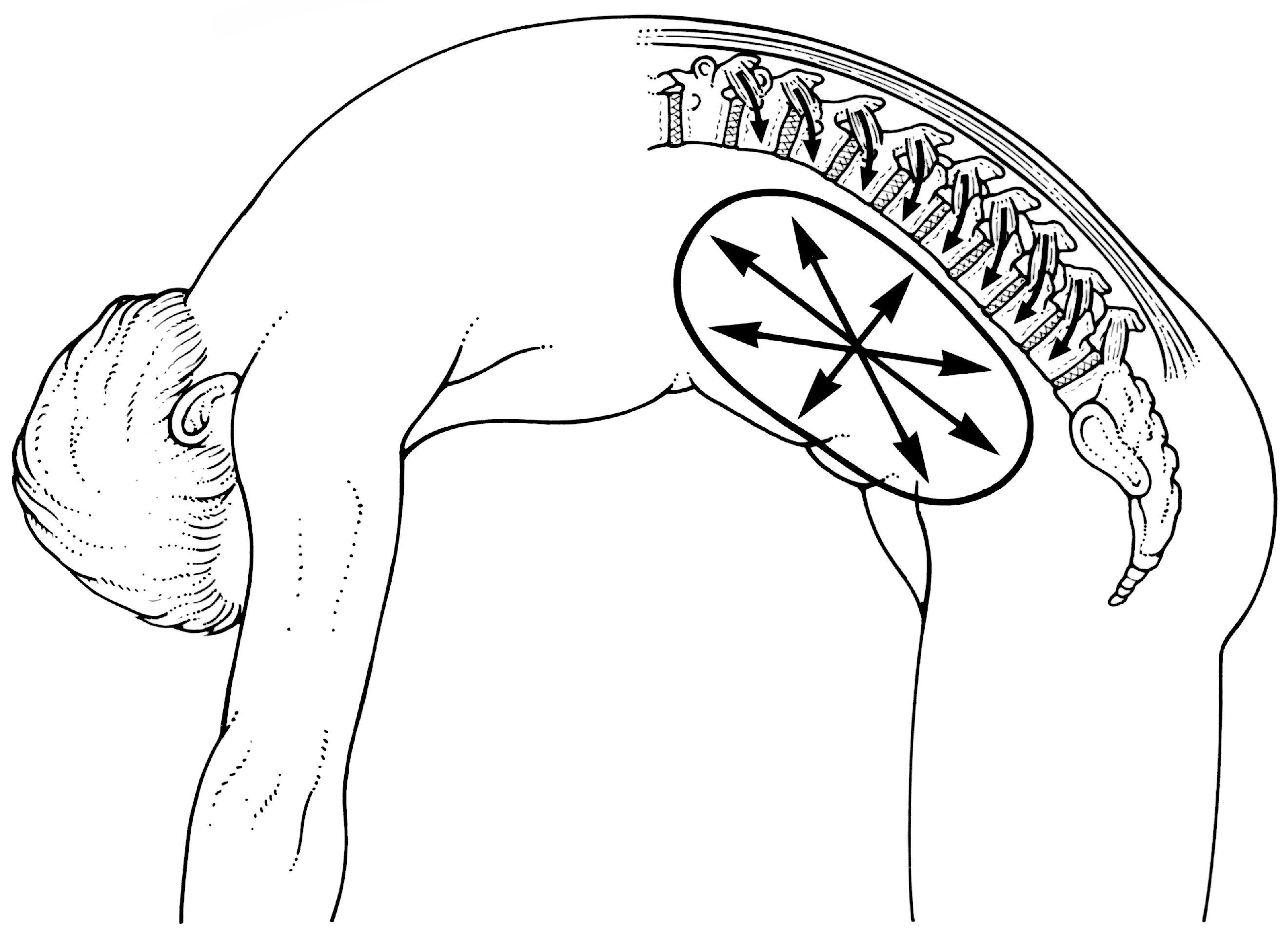 2641x1925 Shearers' Back Pain