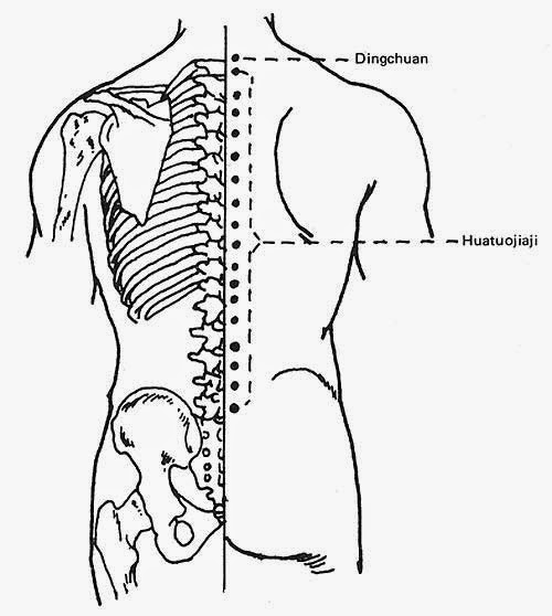 500x558 Acupuncture For Lower Back Pain Hawkes Physiotherapy Blog