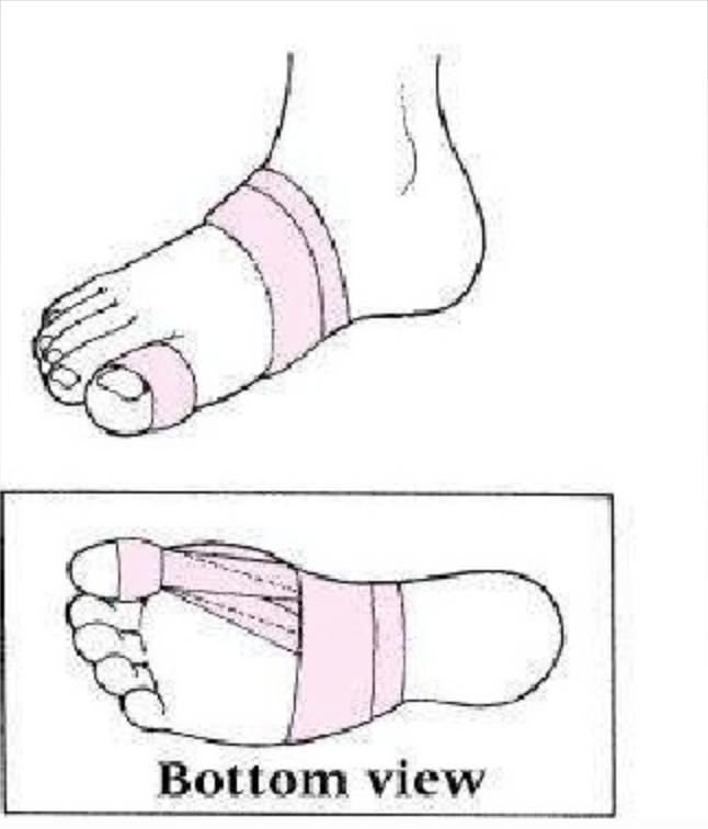 646x756 Big Toe Pain Bjj Rehab