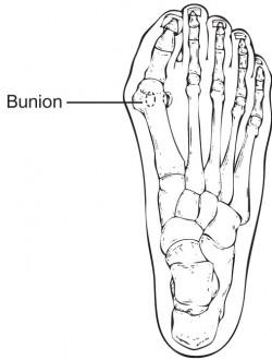 250x330 Bunions