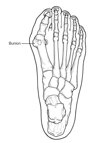 404x558 Bunions Are Often Described As A Bump On The Side Of The Big Toe