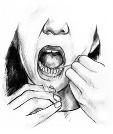 227x270 Diabetes, Gum Disease, Amp Other Dental Problems Niddk