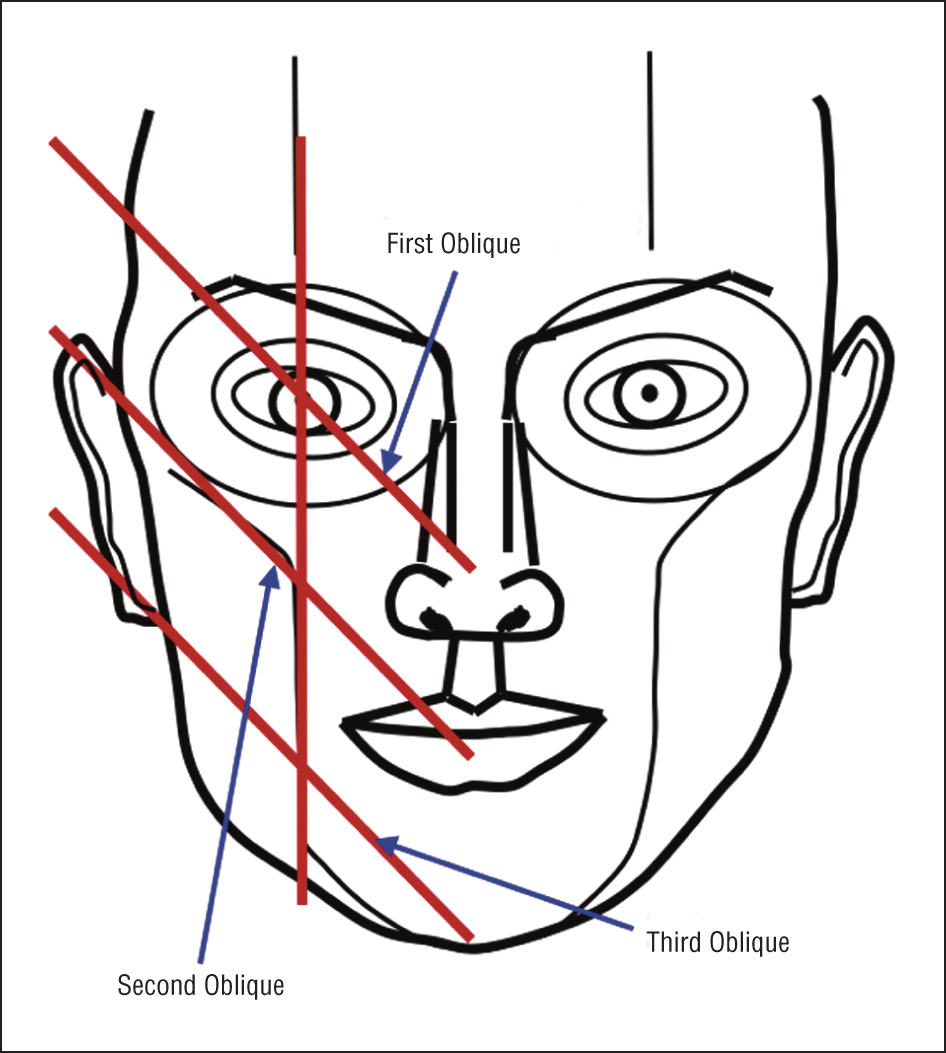 946x1053 Circles Of Prominence A New Theory On Facial Aesthetics Jama