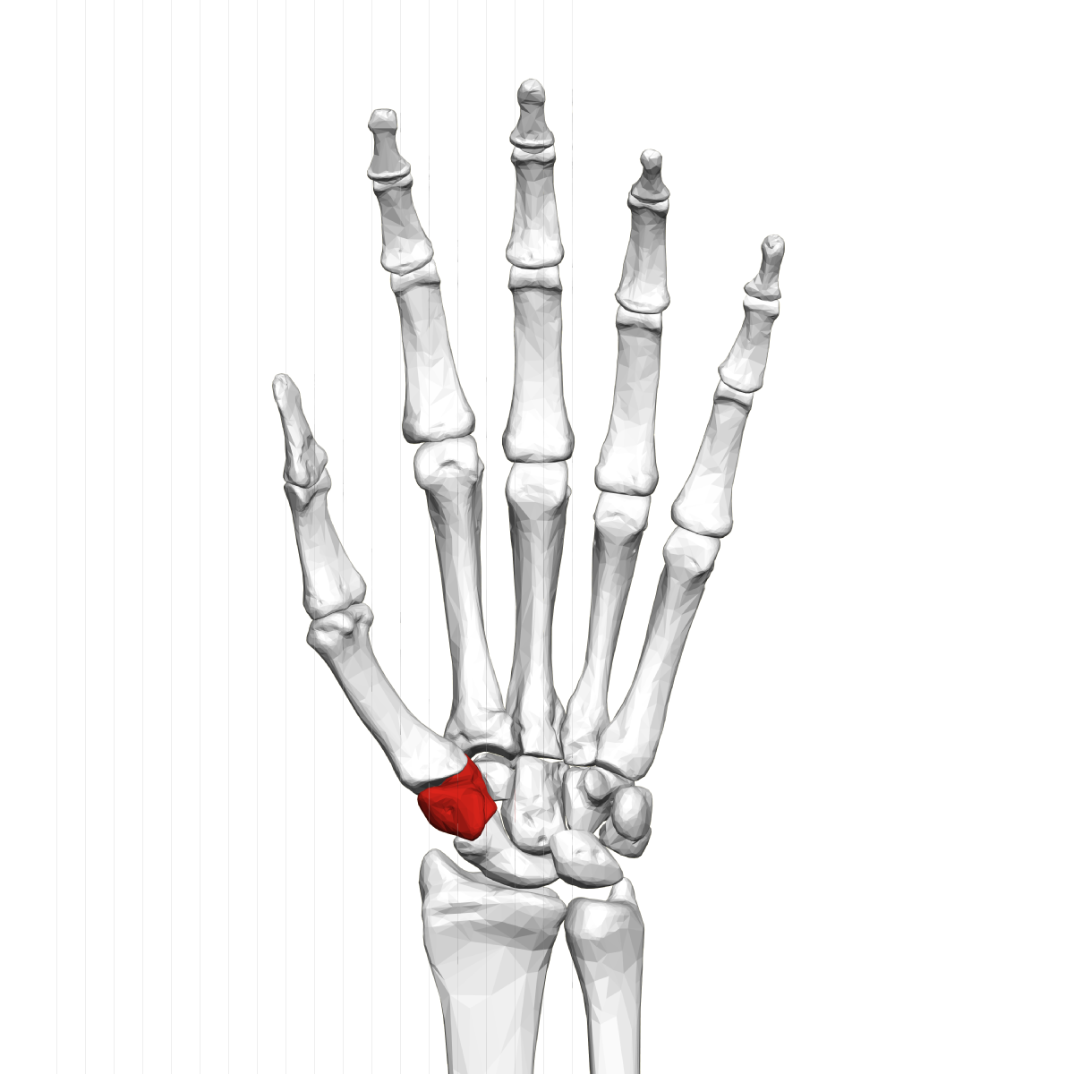 1200x1200 Trapezium (Bone)