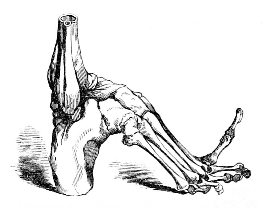 900x724 Bones Stunted By Foot Binding, China Photograph By British Library