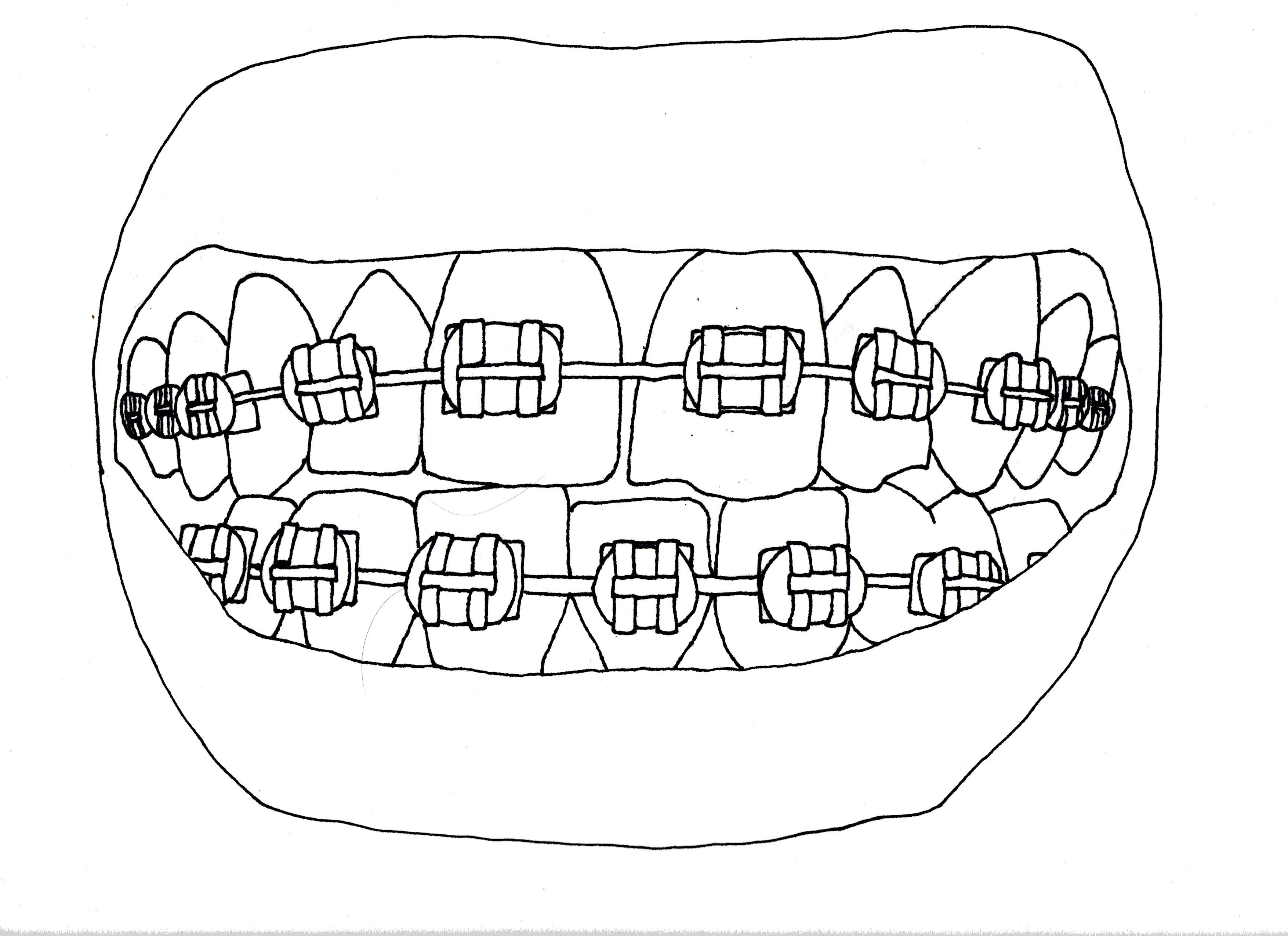 3509x2550 Braces Line Drawing By Sarah Norman Arts
