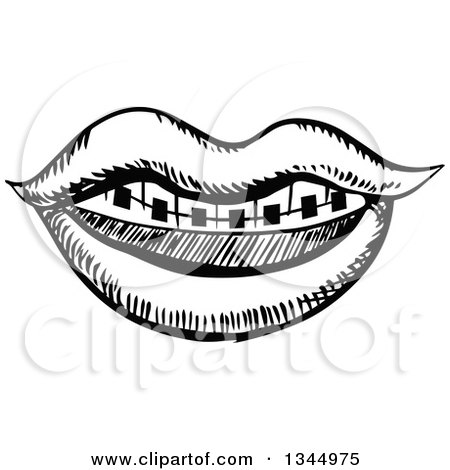 450x470 Clipart Of A Black And White Sketched Mouth With Braces