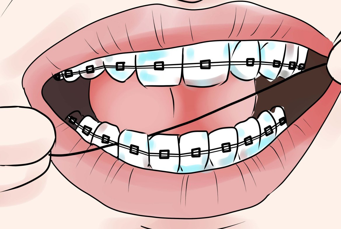 1168x786 Teeth Bleaching Take Care Of Your Braces Awesome Braces Care