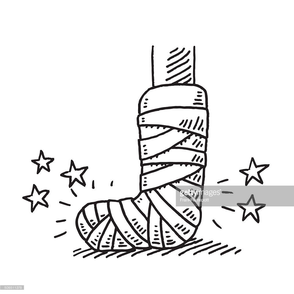 broken bone drawing at getdrawings com free for personal use rh getdrawings com Broken Drawings Broken Hip Clip Art
