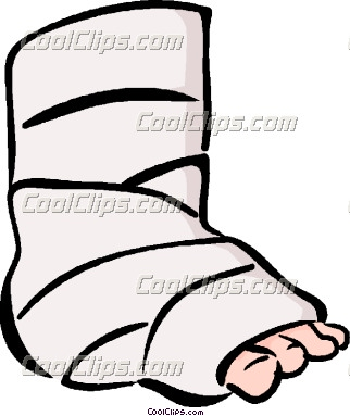 broken leg drawing at getdrawings com free for personal use broken rh getdrawings com broken ankle clipart girl with broken leg clipart