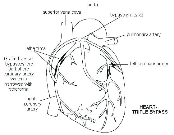 Cardiac cycle drawing at getdrawings free for personal use 560x435 heart artery diagram diagram of heart cardiac heart diagram ccuart Images