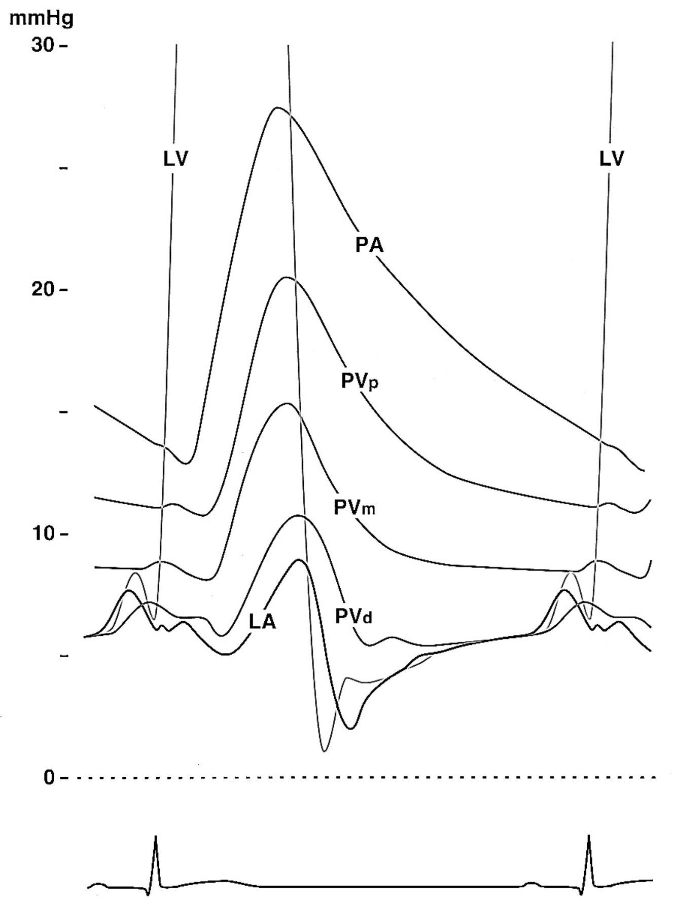 1329x1800 Hemodynamic Determinants Of Doppler Pulmonary Venous Flow Velocity